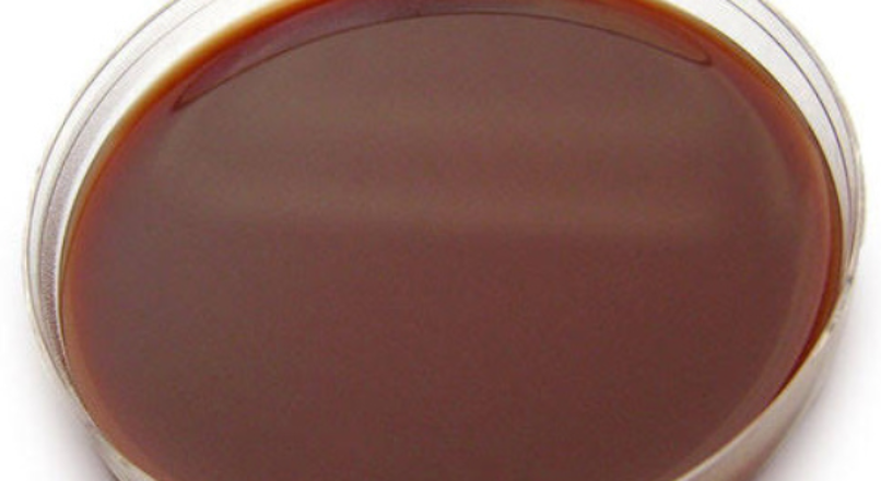 chocolate agar