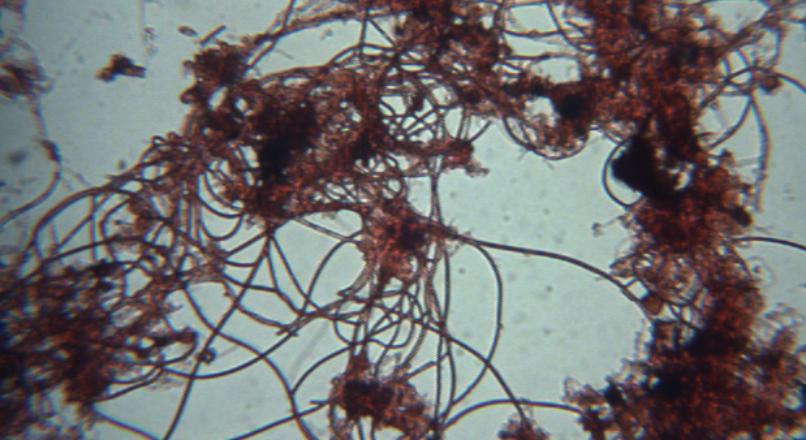 Filamentous Bacteria